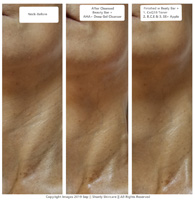 Neck treated with Shunly Skincare products and Beauty Bar